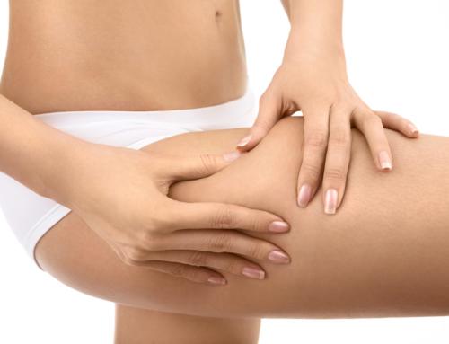 Aprende más acerca de la Celulitis, tipos de Celulitis, y cómo tratarla