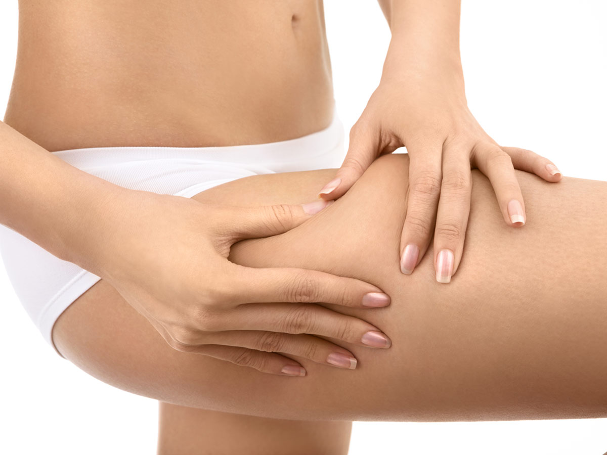 celulitis en bogota tratamiento