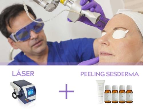 Combinación de Peeling más Tratamiento Láser para Quitar las Manchas en la Piel.