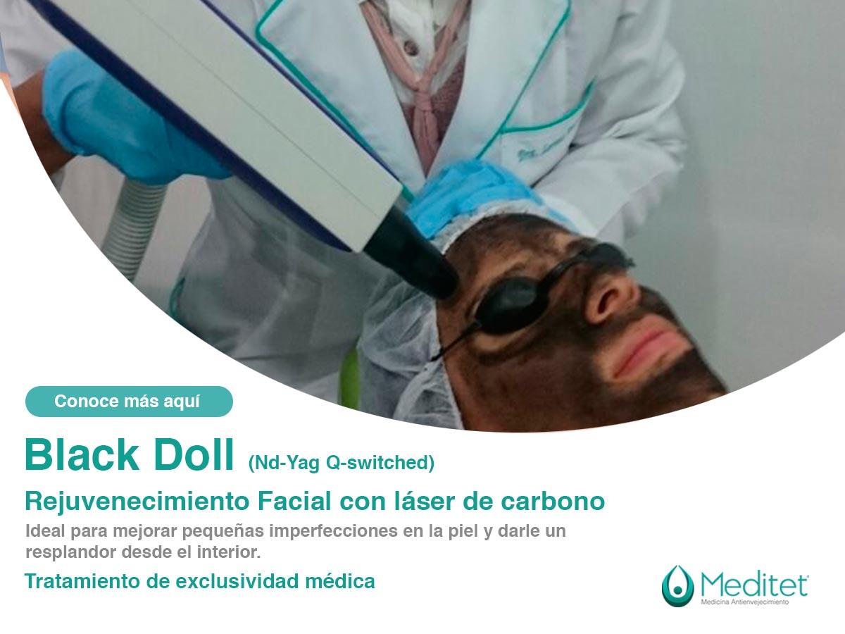 Tratamiento Black Doll Rejuvenecimiento Facial con láser y carbono