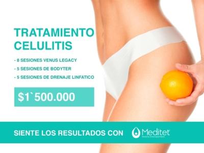tratamientos celulitis bogota