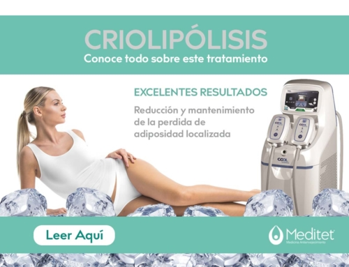 Qué es la Criolipólisis y como funciona el Coolshaping