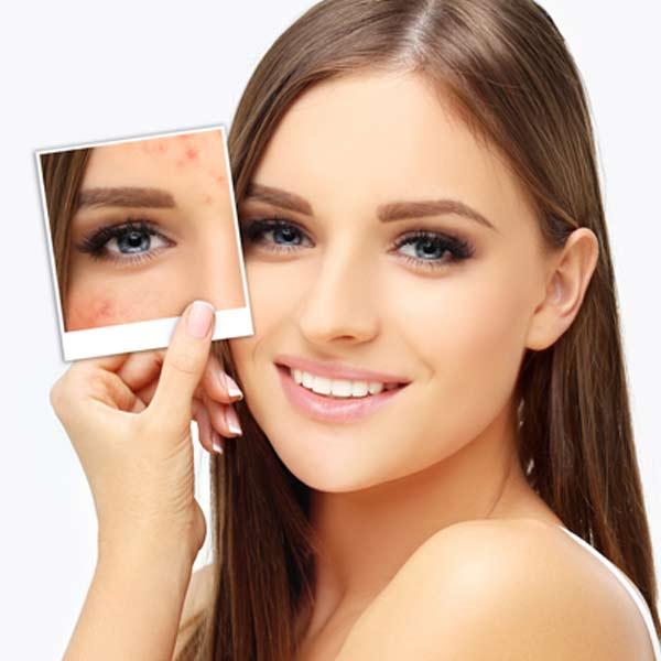 Peeling técnica para renovar la piel
