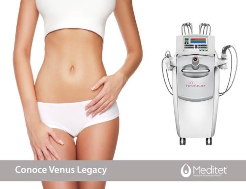 Venus Legacy para remodelación corporal y de la piel