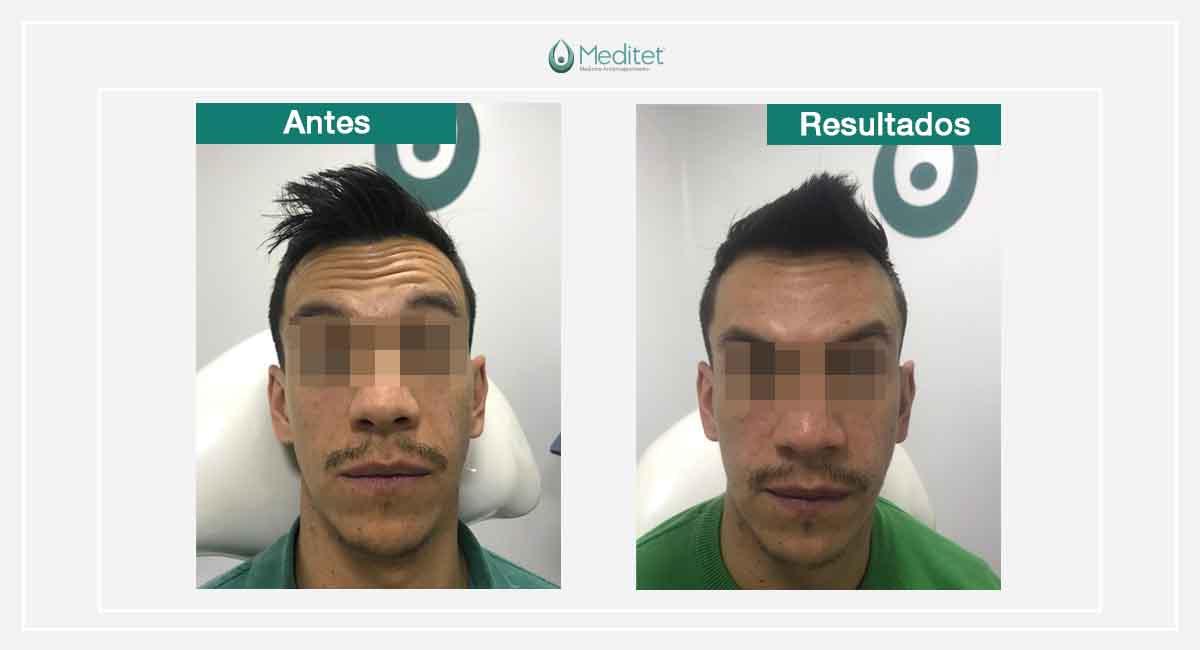 botox bogota antes y despues hombre