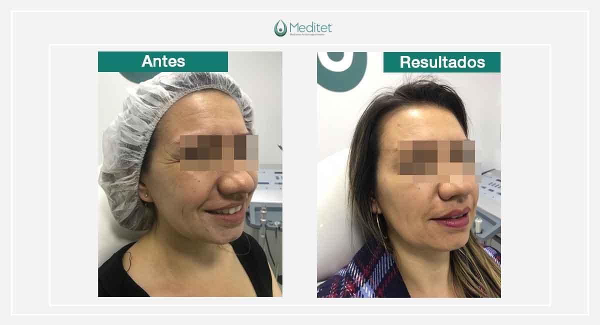 botox bogota antes y despues